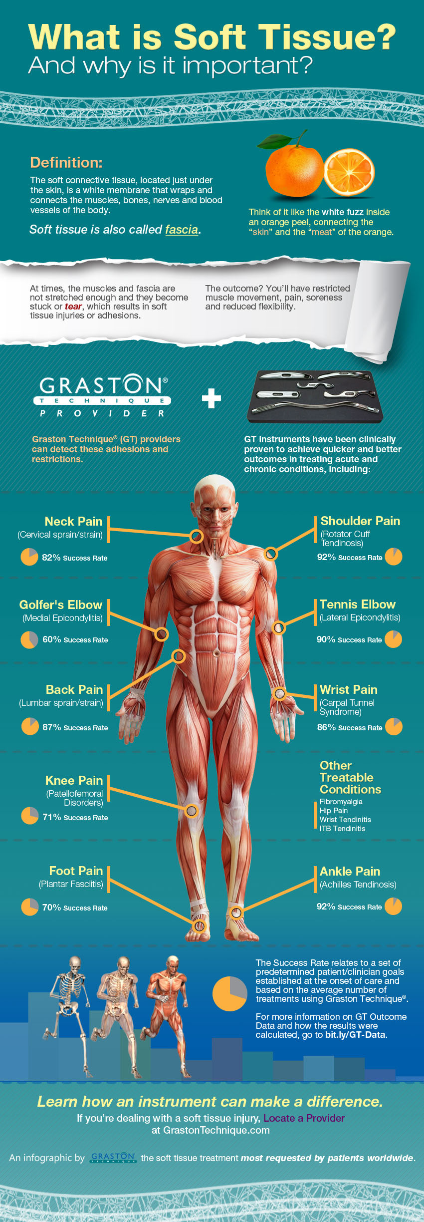 [Infographic] What is Soft Tissue?